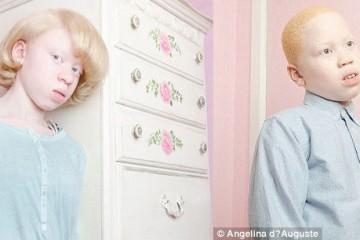 titulka albinizmus