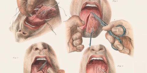 hrozostrasne chirurgicke zakroky (7)