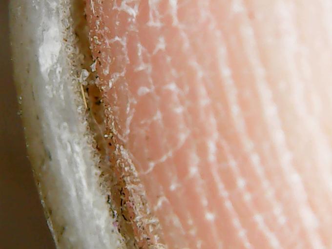 microscope-toenail-02