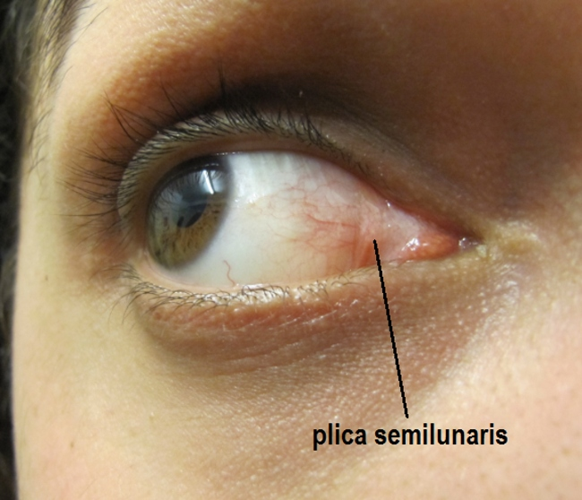 plica semilunaris swollen eye allergies - 650×558