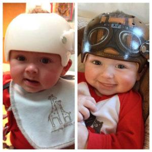 baby-medical-helmet-designs-1