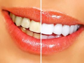 krasne-biele-zuby