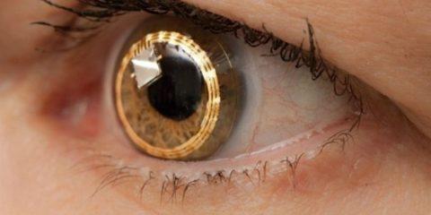 770310-lens-1489133771-650-a4da00bae2-14891604351