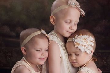 childhood-cancer-survivors-recreate-photo-scantling-photography-8-58bfb504d481d__700