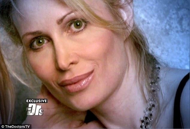 Takto vyzerala Carol pred zákrokom.
