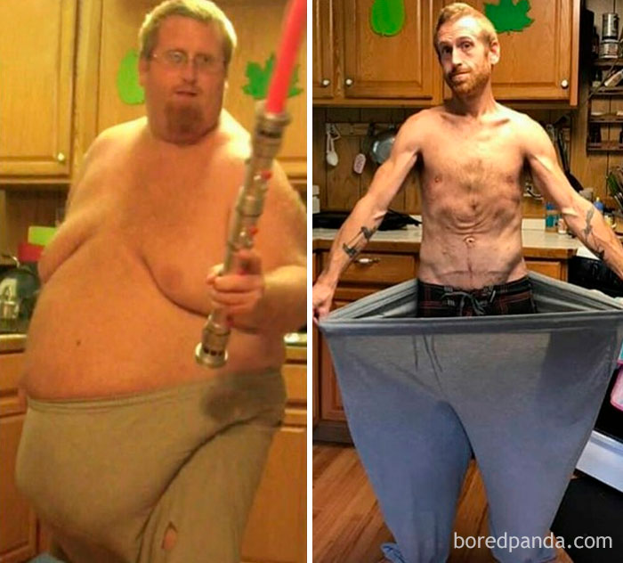 before-after-weight-loss-success-stories-103-59f97ef8aba81__700