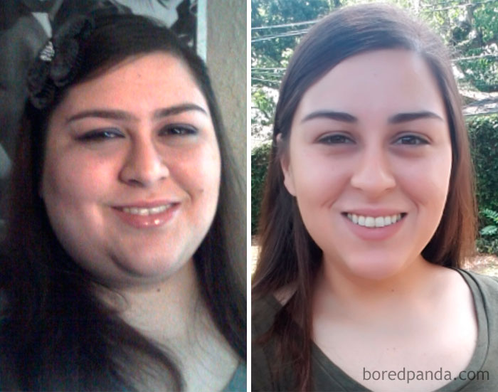 before-after-weight-loss-success-stories-18-59d34f8864564__700