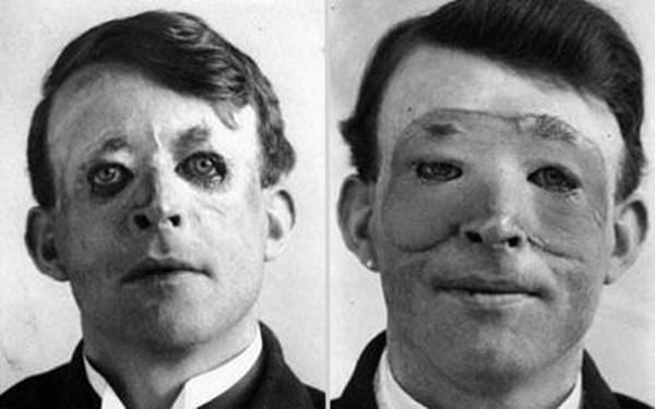 Walter Yeo, jeden z prvých ľudí, ktorý postúpili plastickú operáciu, 1917