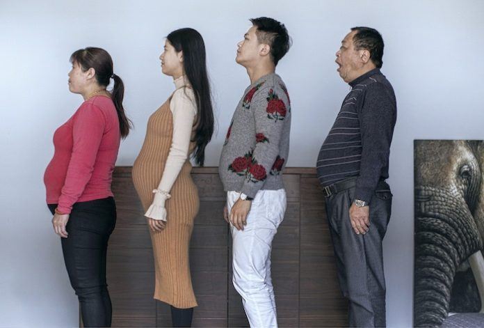 chinese-family-before-and-after-6-month-weight-loss-results-25-5a4b3e7ccf6ce__7001-e1515001683603